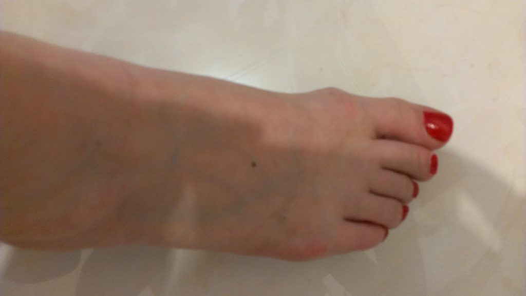 Tratamentul verucilor piciorului. Tratamentul negilor plantari la domiciliu