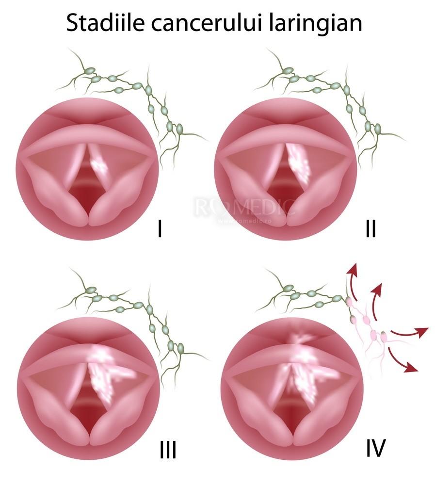Cancer laringian