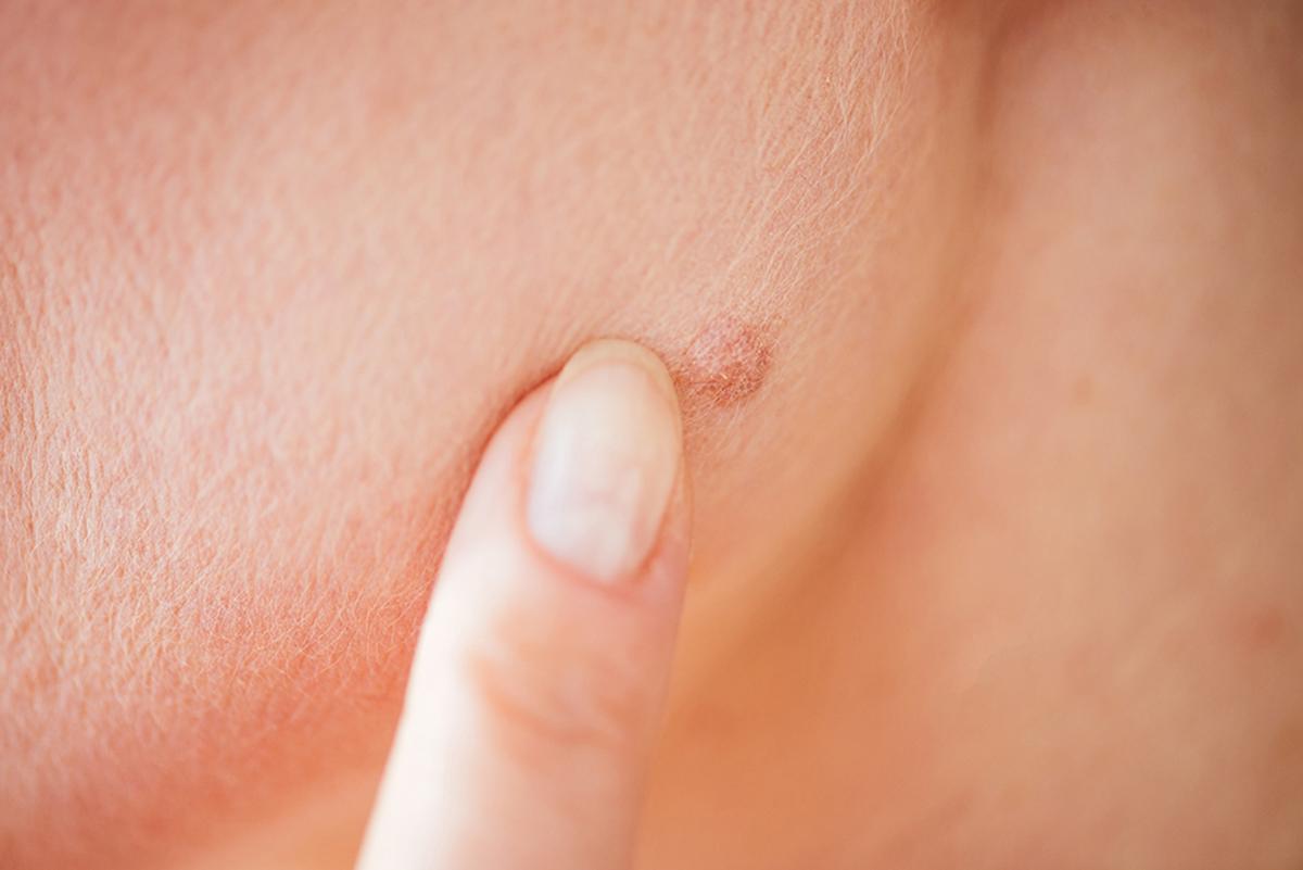humani papiloma virus simptomi kod muskaraca