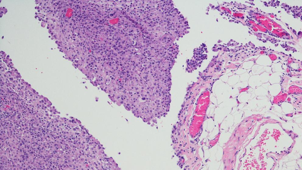 cancer hepatico peritoneal