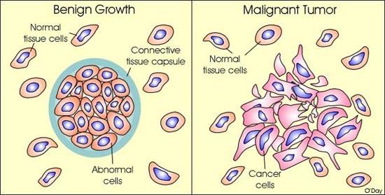 malign cancer tumor segmente de vierme
