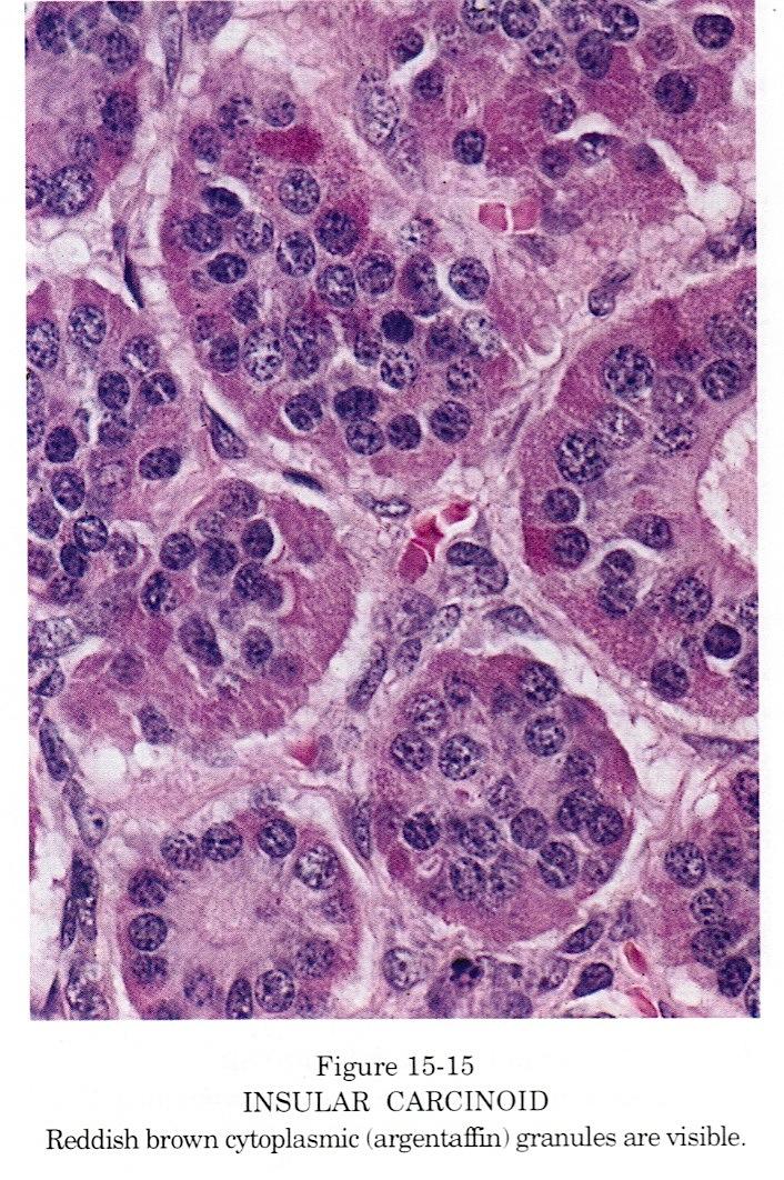 Pancreatic cancer pathology outlines