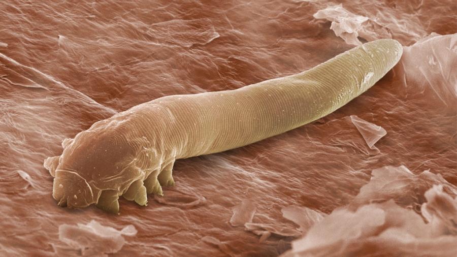 paraziti u nasem organizmu
