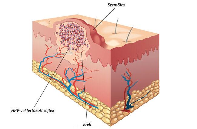 Tratamentul folic remedii papillomas - Cap April - Papilomas balsam