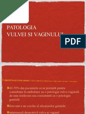 vaginoza si condiloamele condilomul devine alb