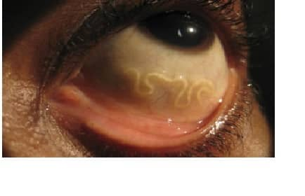 Tratamentul ochilor cu nematode