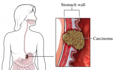 cancer of abdominal lining