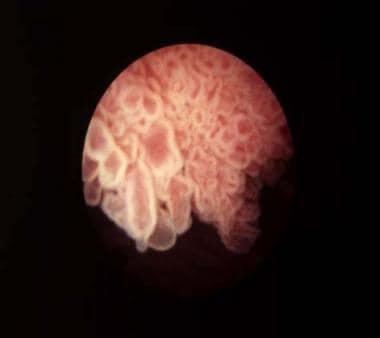 Cancerul vezicii urinare și formele rare de cancer
