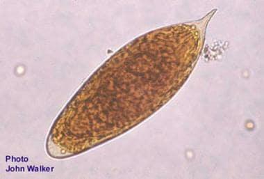 schistosomiasis medscape