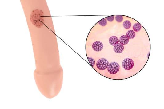 Verrue papillomavirus pubis. Paraziți in corp