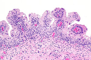 papilloma urinary bladder