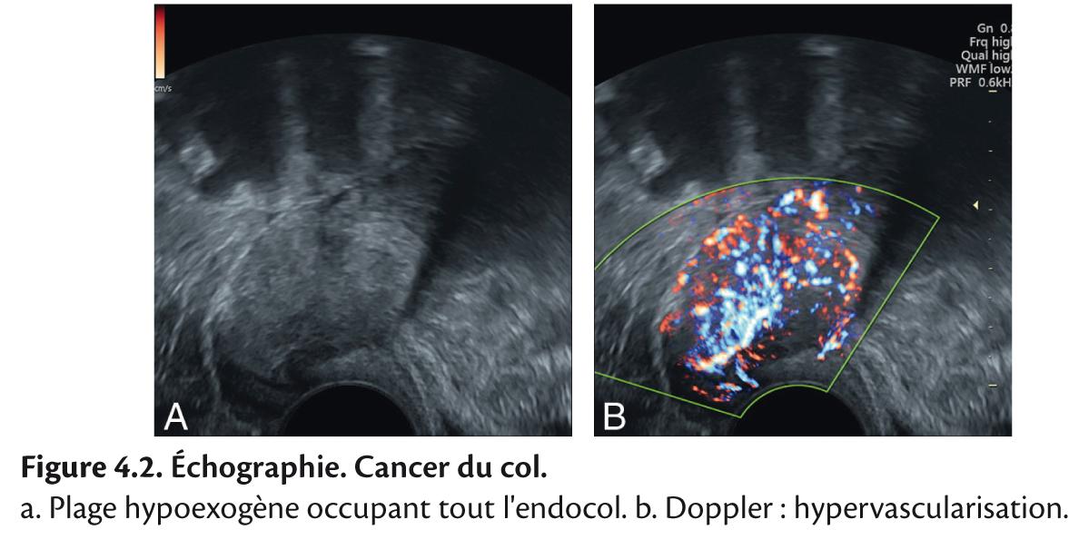 cancer hodgkin stadiu 4 îndepărtarea uterului cu condiloame