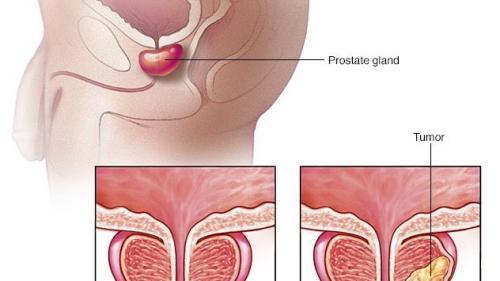 Cât de gravă este boala mea? Stadiile cancerului de prostată - Despre Cancer Prostata