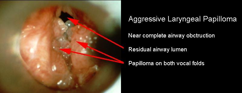 Juvenile respiratory papillomatosis