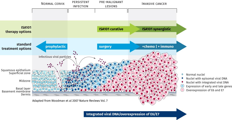 Oropharynx cancer caused by hpv. HPV - Definiția și sinonimele HPV în dicționarul Engleză