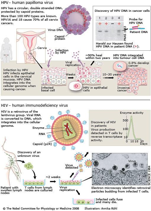 link between hiv and cancer cum se elimină condiloamele de pe corp