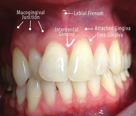 gingival papilloma cause poate elimina papiloamele de pe față