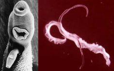 remedii moderne de vierme paraziți cu metazoan