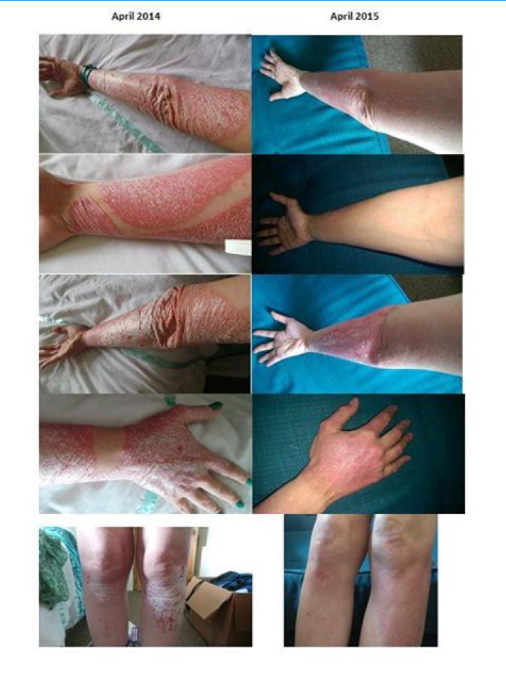 How does helminthic therapy work,