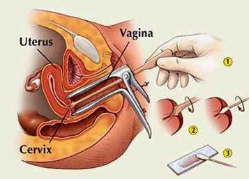 Il papilloma virus porta prurito