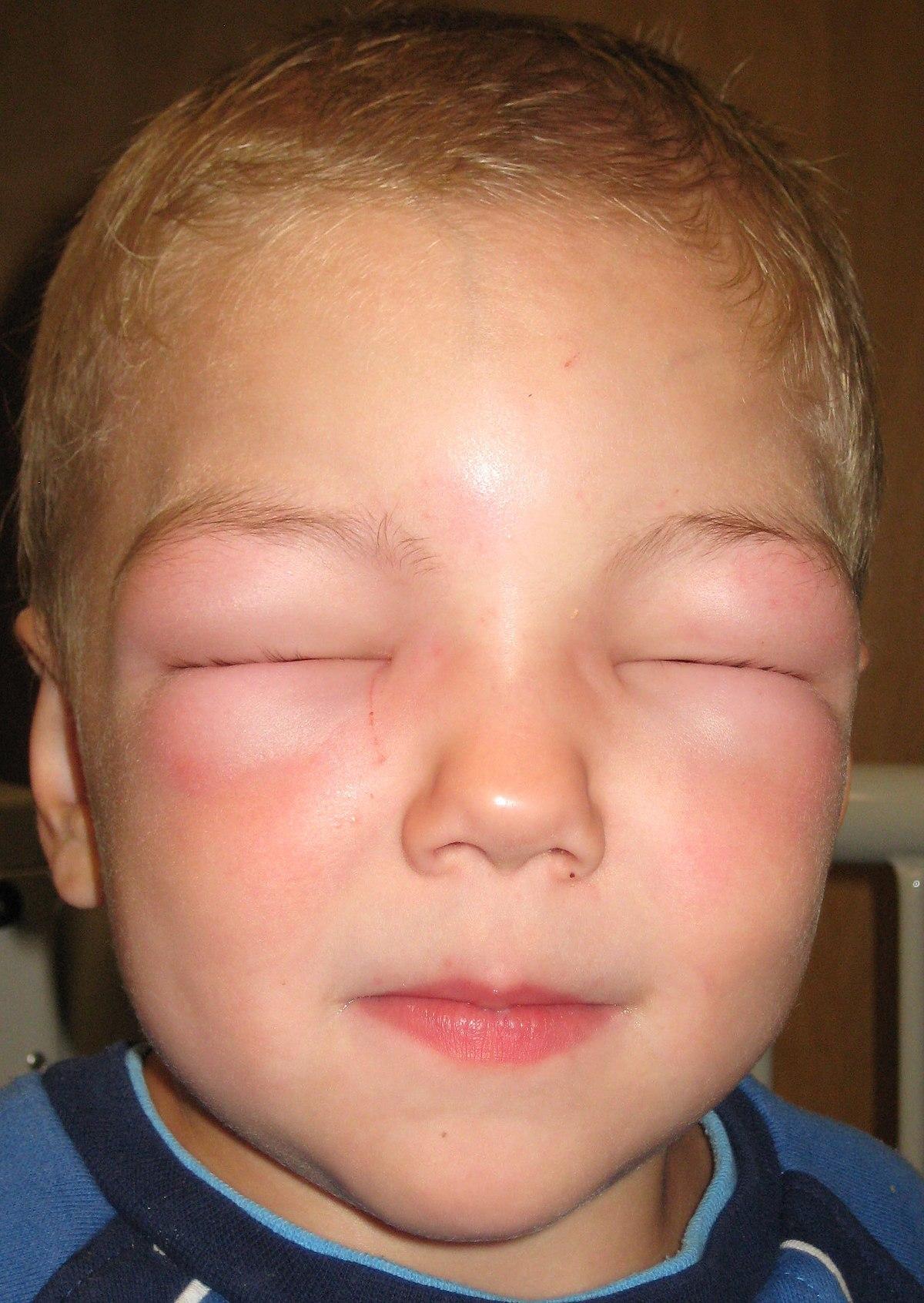tratament alergic la paraziți