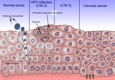 hpv virus cin 2