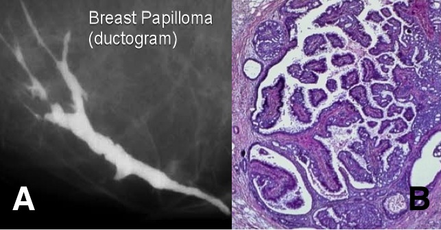 papilloma with atypia