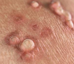 ozonoterapie pentru verucile genitale oxiuri copii