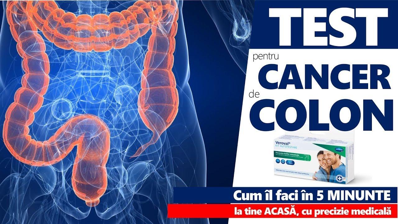 simptome cancer colon barbati