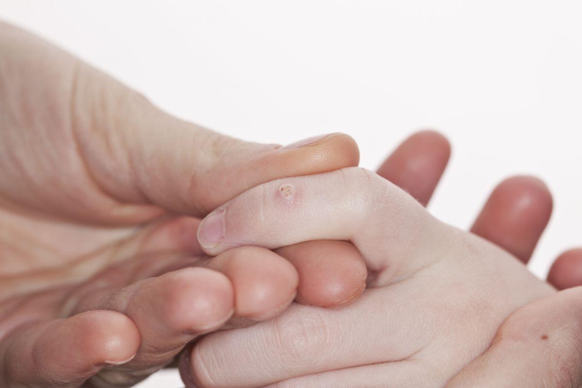 papiloma s-a înroșit și doare ce să facă forum