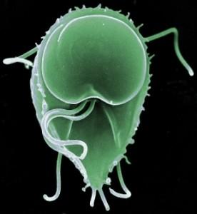 Anticorpi către Giardia lamblia, IgA/M/G