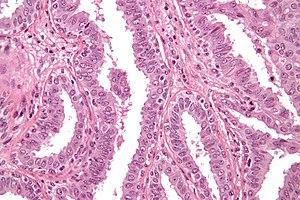 intraductal papilloma libre cancerul de ovare se vede la ecograf