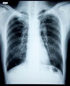 Respiratory papillomatosis bevacizumab -