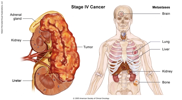 Metastatic cancer growth rate