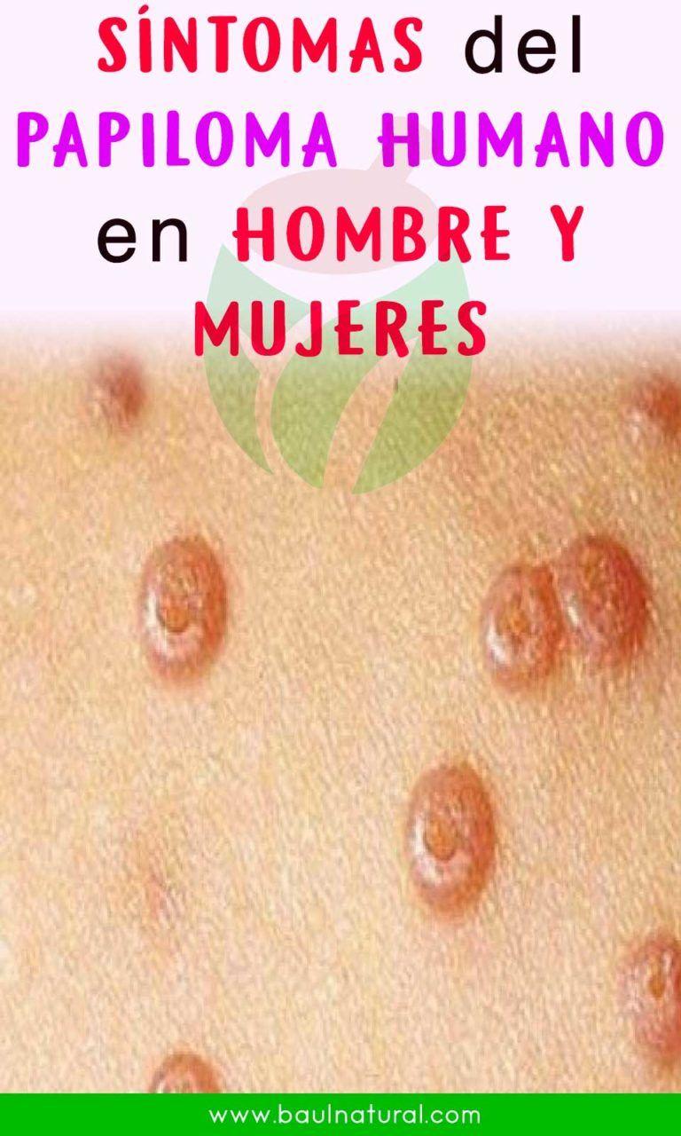 papiloma virus hombre