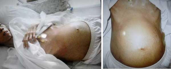 Cancer abdominal pain bloating, Pin on Medicale, Cancer and abdominal swelling
