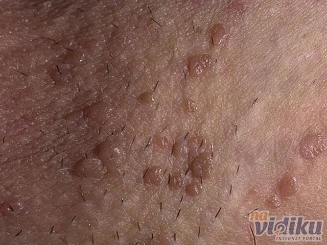 tratamentul parazit denas hpv genital masculina
