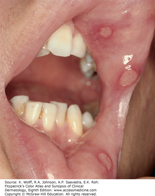 oropharyngeal papilloma icd 10