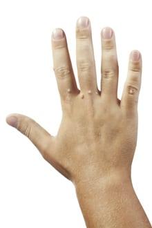 Spitz sub unghia de pe picior - Allergodermatosis