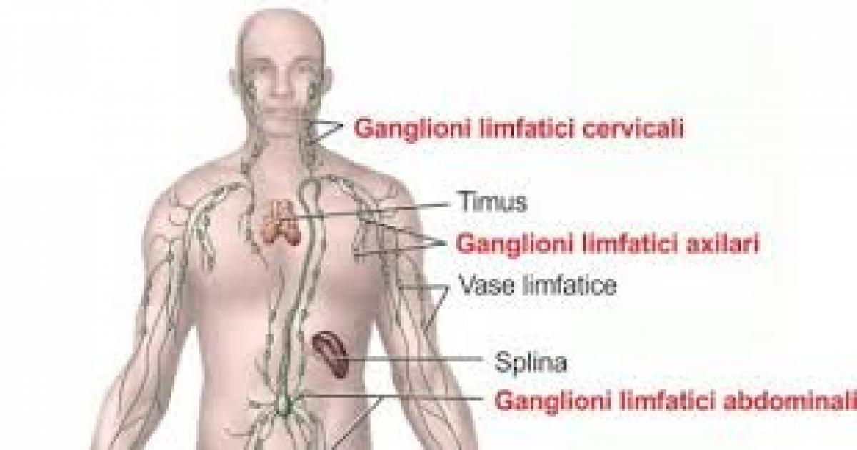 limfom Hodgkin | despre cancer