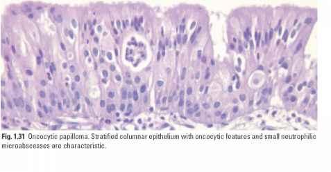 respiratory epithelium papilloma metastatic cancer dangerous
