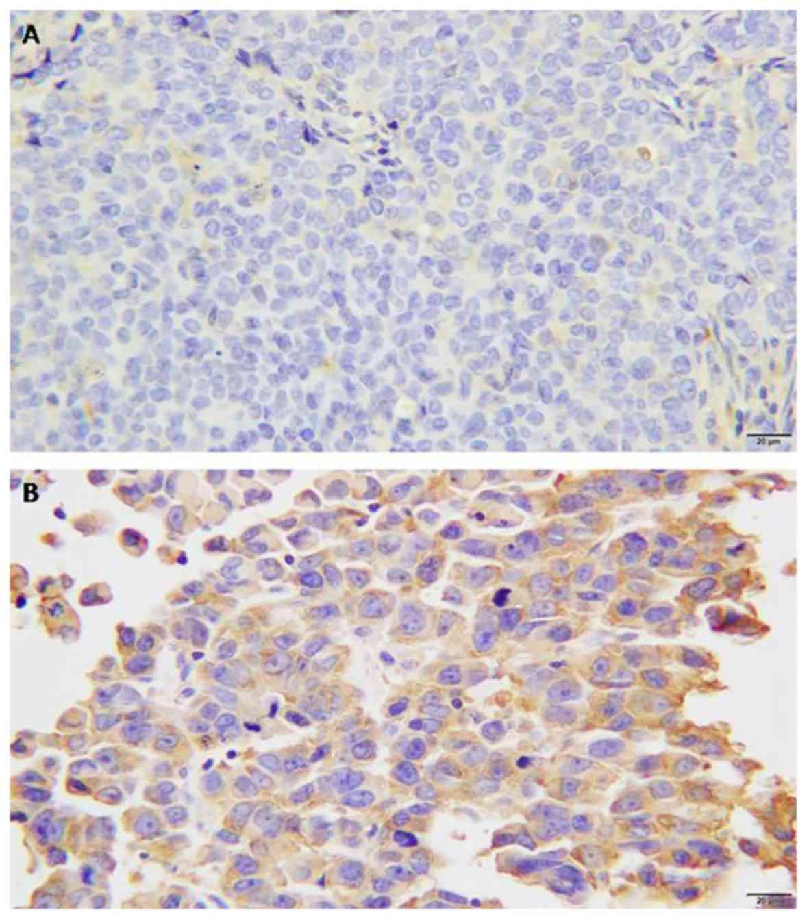 Ovarian cancer zhongwen
