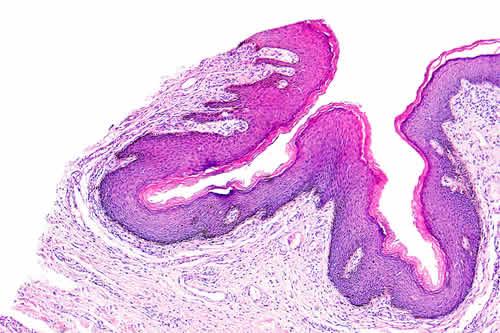 Vaccinazione papilloma virus torino - Vacina hpv cancer de colo de utero