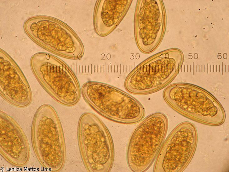 Larvas de oxyuris vermicularis
