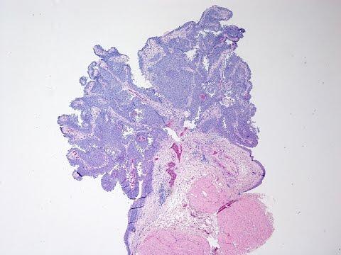 Medicamente parazitare nsp. Tratamentul de pizhmoy lyambliy - csrb.ro