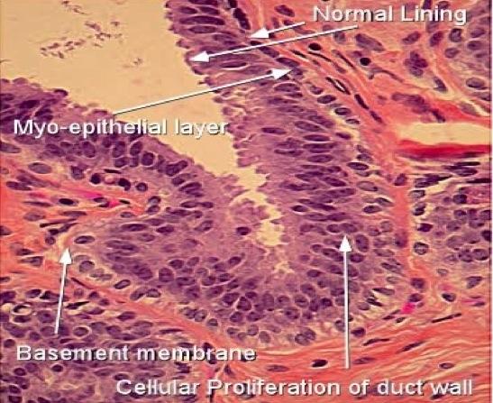 intraductal papilloma and hpv condiloame pe genunchi