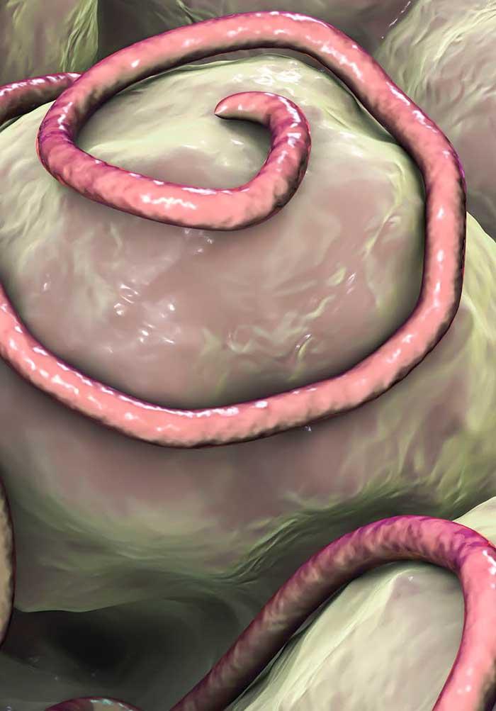Define helminths - Define helminthiases