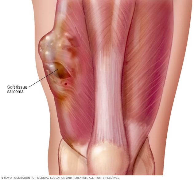 Sarcoma cancer back. Patient Diagnosed with a Rare Sarcoma Tumor orez pentru detoxifiere