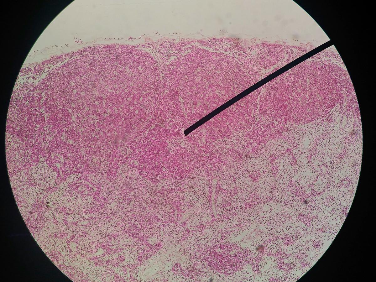 infezione genitale papilloma virus