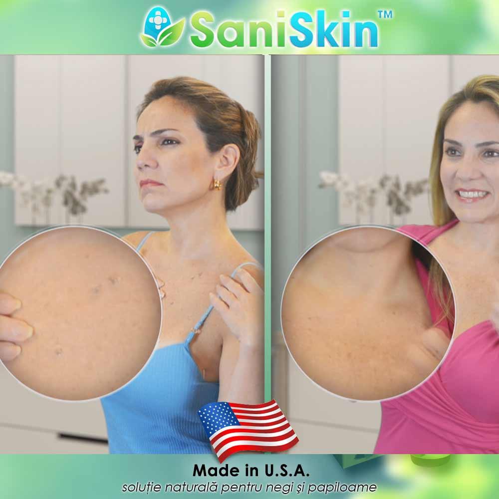 Tratament laser pentru veruci (negi) - SKINMED® Clinic